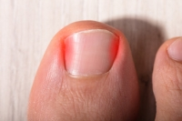 Why Do I Have an Ingrown Toenail?